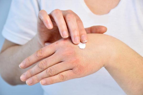 Wat te doen tegen een droge huid.